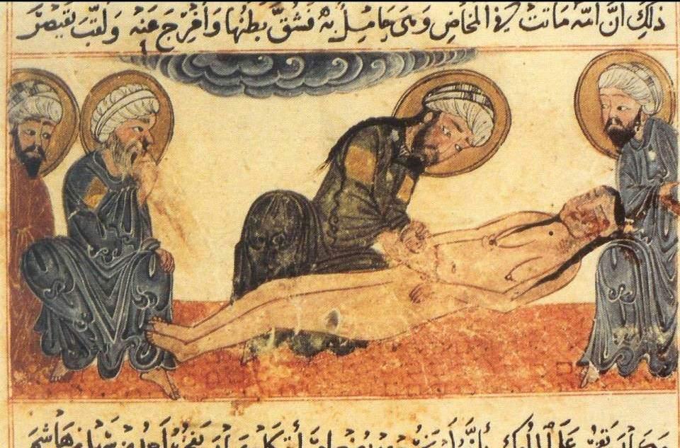 Ilustración de una cesárea según el manuscrito de al-Bīrūnī, Al-Aṯār al-Bāqiya `an al-Qurūn al-Jāliya. MS 161, Universidad de Edinburgo.